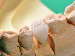 高品質な技工物で歯科医院様のご要望にお応えします