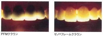 口腔内での透過度比較